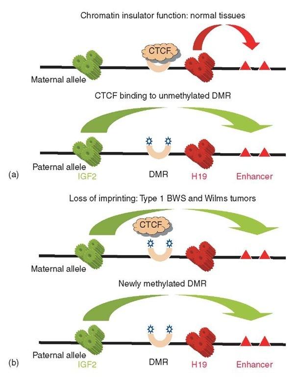 beckwith � wiedemann syndrome genetics