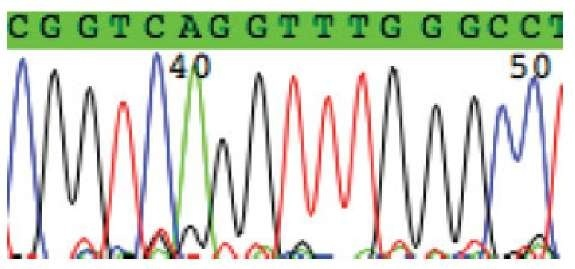 A section of a chromatogram produced by an automatic DNA sequencer. There are four different traces: Red for T, black for G, green for A, and blue for C. The x-axis is the time line when a subpopulation passes the detection point. The peak height is related to the number of fragments passing the detection point