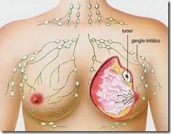 Carcinoma 4