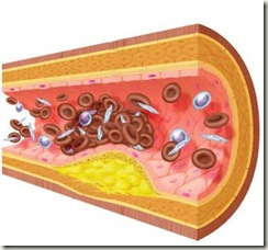 cirugia-sistema-circulatorio-arteria-grasa-obesidad-secuelas
