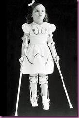 polio girl