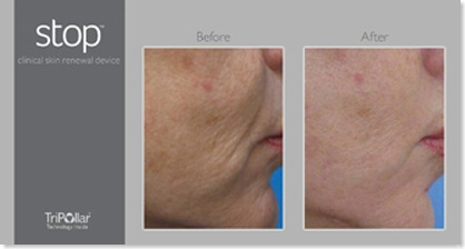 before_after_cheek stopage