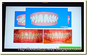 invisalign results orchard scotts dental beaute runway