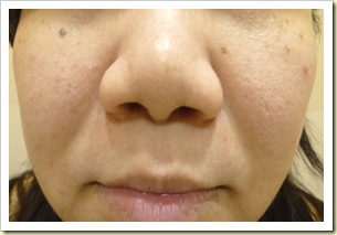 Fractional Laser Before Treatment