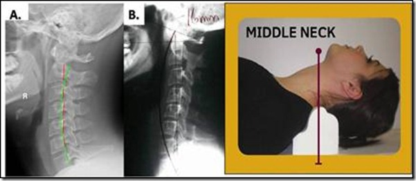 cervical retrolisthesis traction Cervical spondylolisthesis is vertebral misalignment which can cause pinched nerves and spinal stenosis learn about spondylolisthesis in the neck.