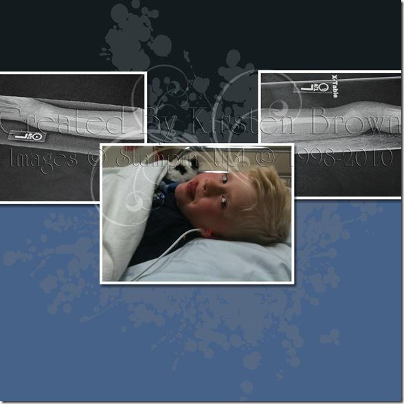 Spencer Broken Arm ER-003 copy