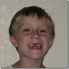 gavin-teeth-4