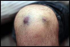 1502_platelets_james_0011