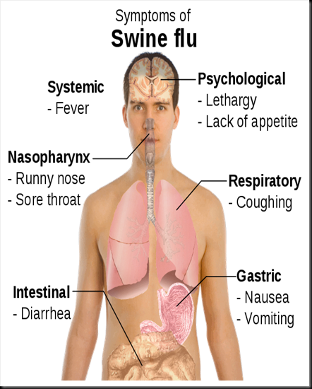 symptoms_of_swine_flu