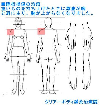 五十肩四十肩 腱板損傷の治療