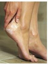 dry_cracked_feet