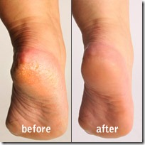 pedi-before-after