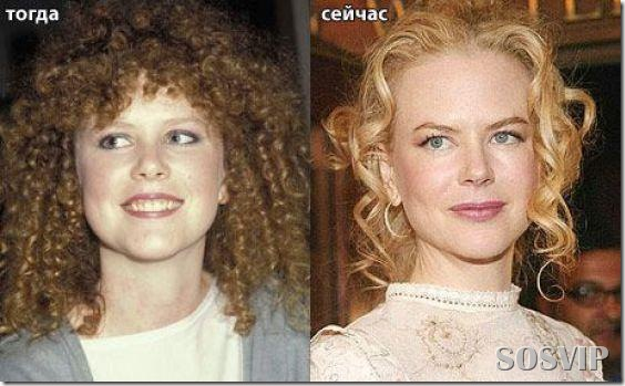 Celebridades antes e depois - Celebs before after.jpg (2)