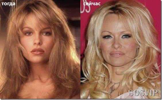 Celebridades antes e depois - Celebs before after.jpg (26)
