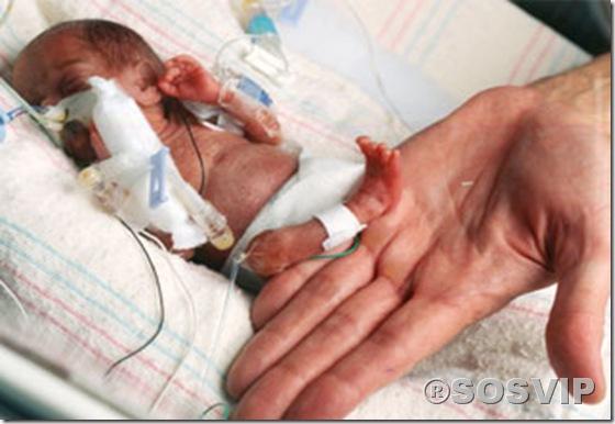 Bebês anormalidades anomalias.jpg (3)