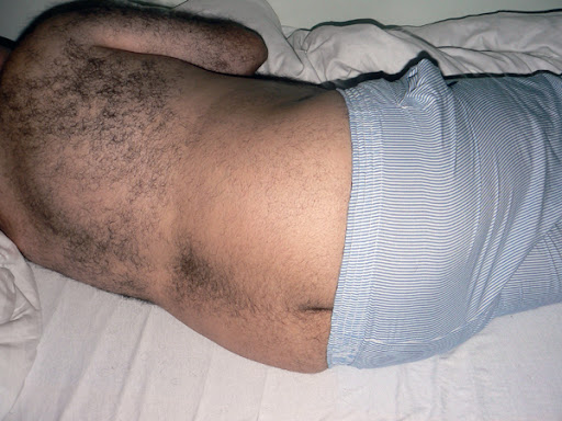 Picture of fat hairy butt