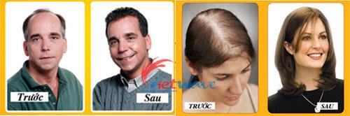 rụng tóc, hói đầu, bị rụng tóc nhiều, đầu tự nhiên bị hói, ngăn rụng tóc, chống rụng tóc, thuốc mọc tóc, thuốc kích thích mọc tóc, làm sao ngăn tóc rụng, dầu gội ngăn rụng tóc, dầu gội chống rụng tóc, dầu gội kích thích mọc tóc, thuốc mọc tóc nhanh, dung dịch kích thích mọc tóc, thuốc mọc lông, dưỡng tóc, chăm sóc tóc, Trị Rụng Tóc, kích thích tóc mọc nhanh, X-Hair, Thuốc mọc tóc cao cấp, Giúp mọc tóc một cách tự nhiên và hiệu quả