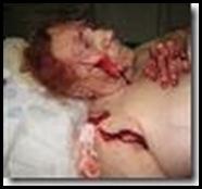 Rensburg_Van_Hettie_TorturedFingersCutOff_FarmAttackHusbandDeadJuly2008Naboomspruit
