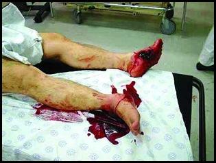 FarmMurderVictimTorturedEvidencePolice1998_ManyBurnt_Mutilated_Tortured