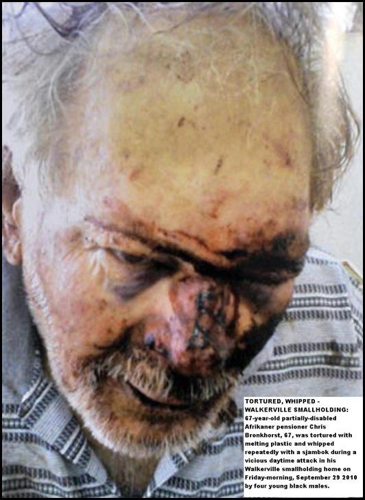 Bronkhorst Chris disabled Walkerville man tortured melt plastic and sjambok Sept292010 4 blacks