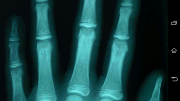 Screenshot of اشعة مقطعية X-RAY