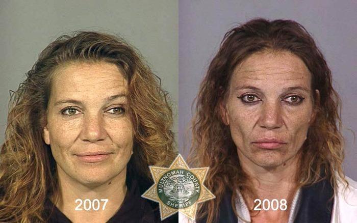 drug-abuse9