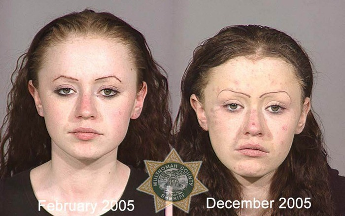 Shocking Pictures Show Consequences of Drug Use | Amusing ...