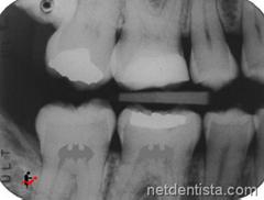 raio x dentista