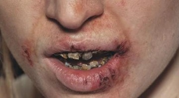 dentes_oxi
