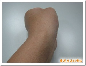 ganglion_after03