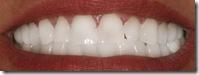 teeth b