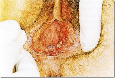 HERPES GENITALIS dalam KEHAMILAN
