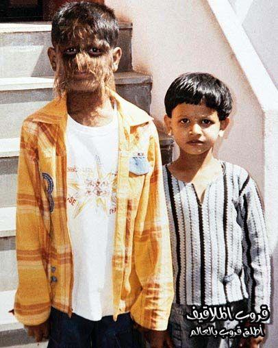 حالة غريبة لطفل هندي