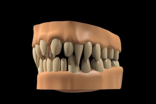 animation - modo 501 Feature Tour 501henning_sanden_teeth_560