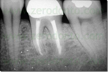 terapia endodontica