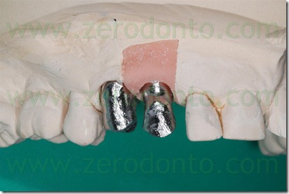 angulated abutment