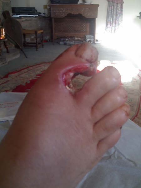 Foot%20injury%20by%20shotgun%201.jpg