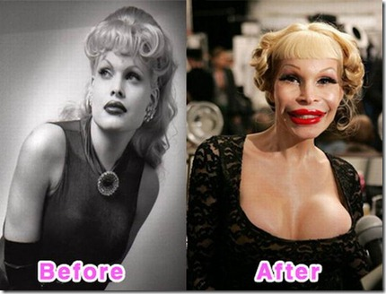 celebrity_plastic_surgery_01