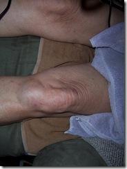 more knee whack 8.4.09 004
