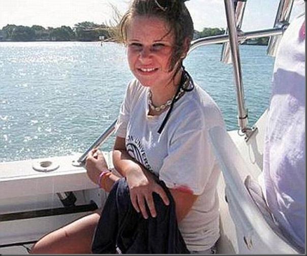 Barracuda ataca menina de 14 anos (3)