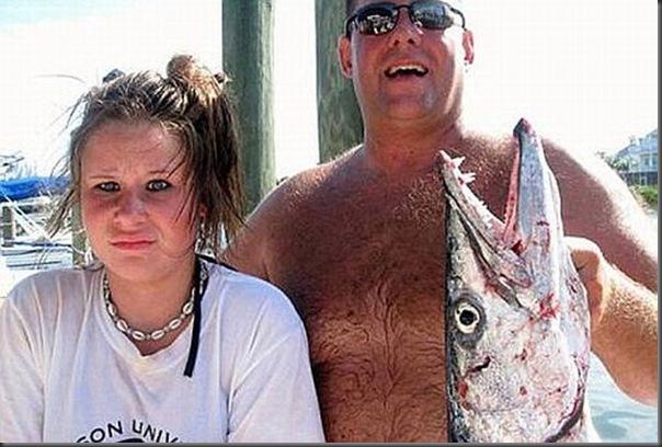 Barracuda ataca menina de 14 anos (4)