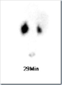 renal scan 1