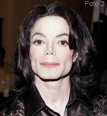 ¿Como se hizo blanco Michael Jackson ?