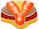 Richter's hernia