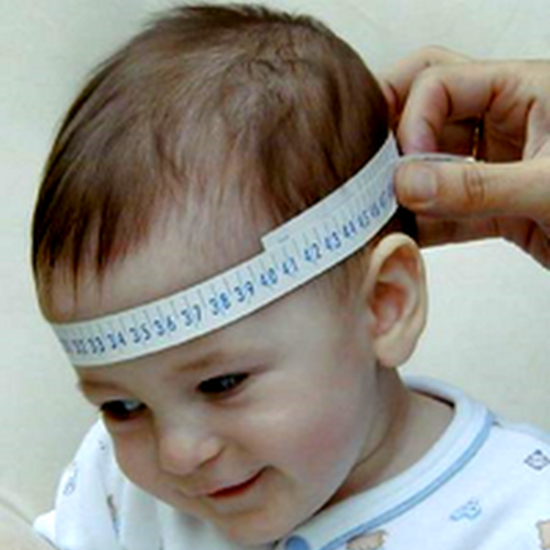 HYDROCEPHALUS (Pediatrics)