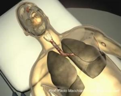 Still image from a video showing a visualization of the transplantation operation using the new trachea. (Credit: Paolo Macchiarini)