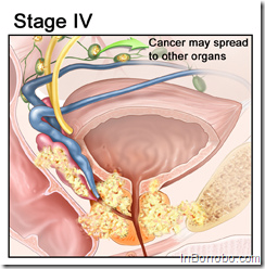 Prostate Cancer Stage IV