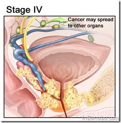 Prostate Cancer Stage IV