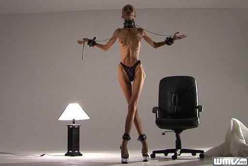 A Triste e Falsa Beleza da Anorexia - Parte 2
