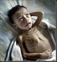 malnutrition Guatemala